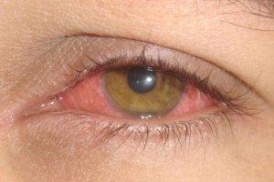 Conjuntivite: doença contagiosa começa a atacar capixaba